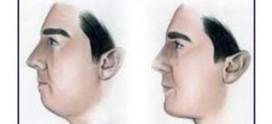 استبدال وإزالة الذقن الاصطناعی